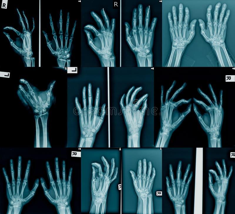 Samlingsröntgenstrålebild royaltyfri fotografi