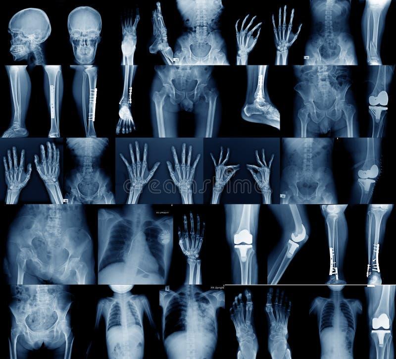Samlingsröntgenstrålebild arkivbilder