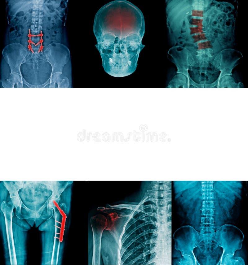 Samlingsröntgenstrålebild i blåttsignal royaltyfria bilder