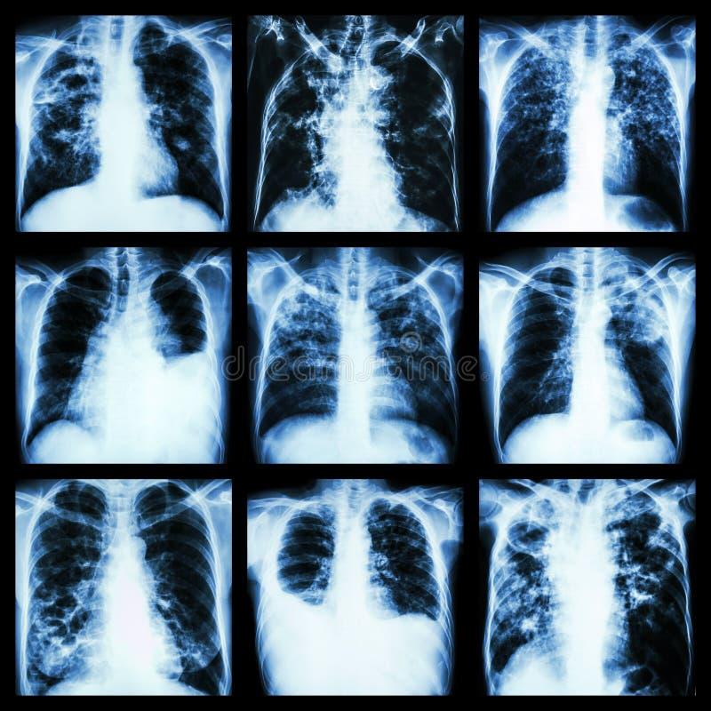 Sammlung der Lungenerkrankung (Tuberkulose der atmungsorgane, Pleuraerguss, Bronchiectasis) stockfotografie