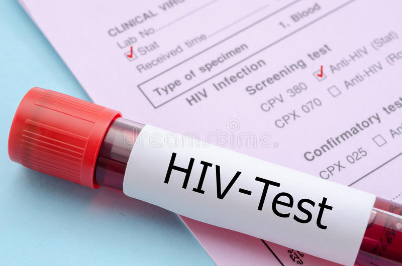 Sample blood collection tube with HIV test. stock images