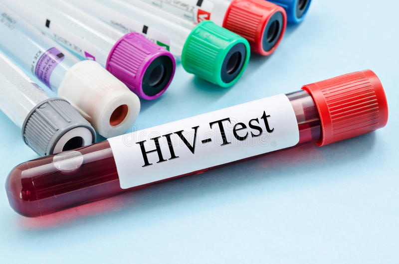 Sample blood collection tube with HIV test label. stock images
