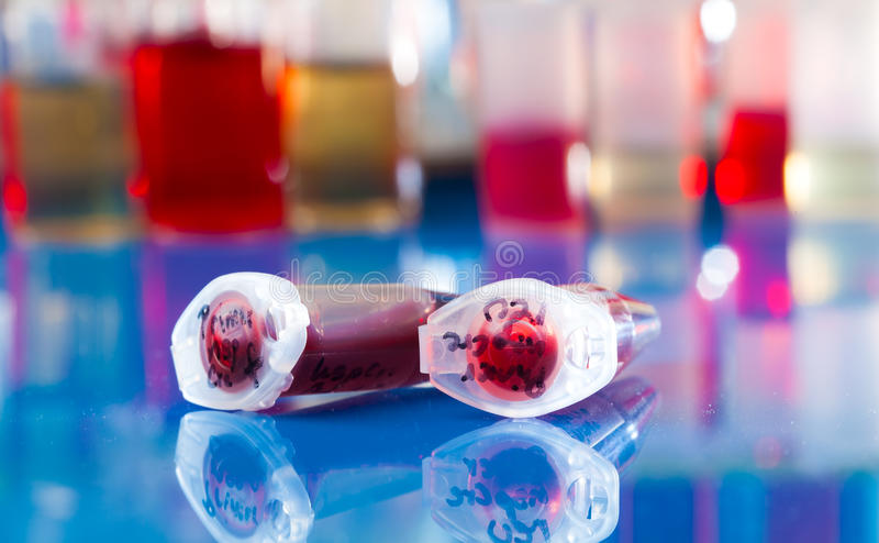 Sample of stem cells. In the reaction tube stock image