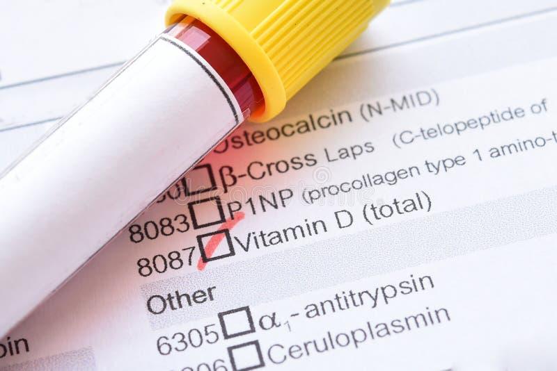 Sang pour l'essai de vitamine photos libres de droits