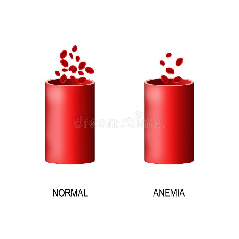 sangre del ser humano y del vaso sanguíneo sanos con anemia stock de ilustración