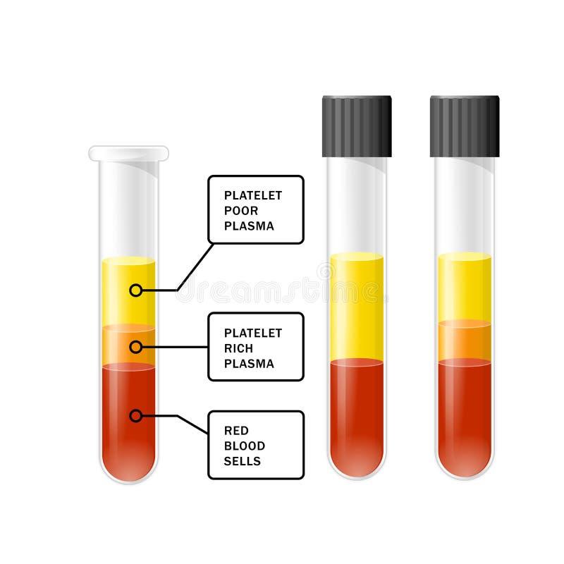 Sangre después de la separación de plaquetas en la centrifugadora en el tubo de ensayo, PRP, plasma plaqueta-rica stock de ilustración