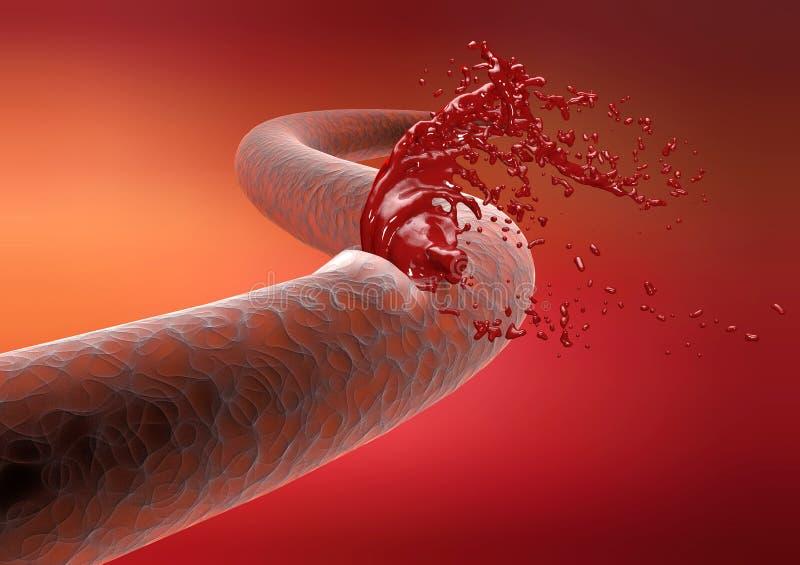 Sangue do sangramento da ruptura da artéria do corte da veia foto de stock