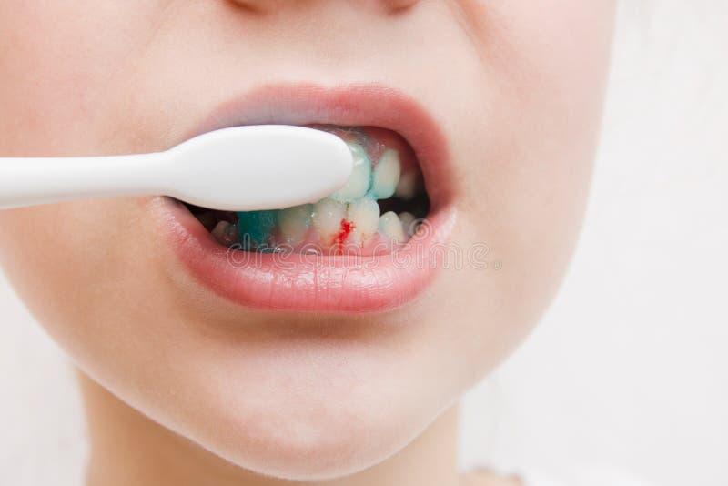 Sanguinando ai denti durante la spazzolatura con lo spazzolino da denti gomme dell'emorragia immagini stock