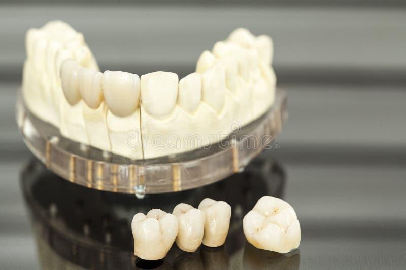 Sanità dentale fotografia stock