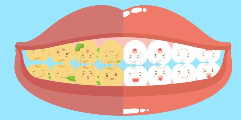 Santé et carie dentaire de bande dessinée illustration de vecteur