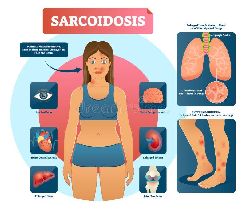 Sarcoidosisvektorillustration Lungor hjärta, autoimmune sjukdom för ögon stock illustrationer