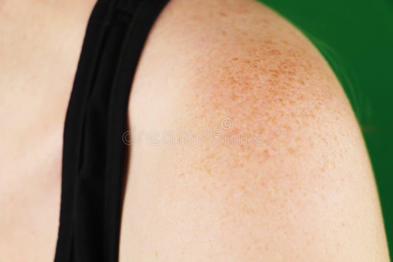 Sardas na parte traseira do close up do homem no fundo branco Pigmentação e lote das marcas de nascença nos ombros masculinos, pr fotos de stock royalty free