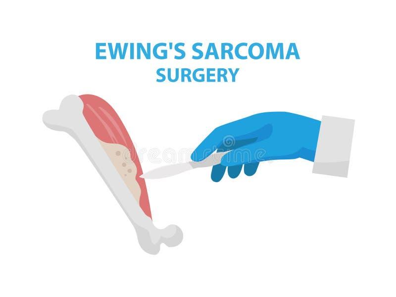 Sarkomchirurgie-Vektorillustration Ewing s lokalisiert auf weißem Hintergrund im flachen Design Medizinische infographic Elemente lizenzfreie abbildung