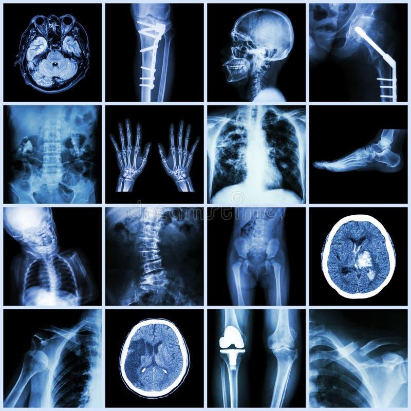Satz des Röntgenstrahls Mehrfach von der menschlichen, mehrfachen Krankheit, orthopädisch, Chirurgie lizenzfreies stockfoto