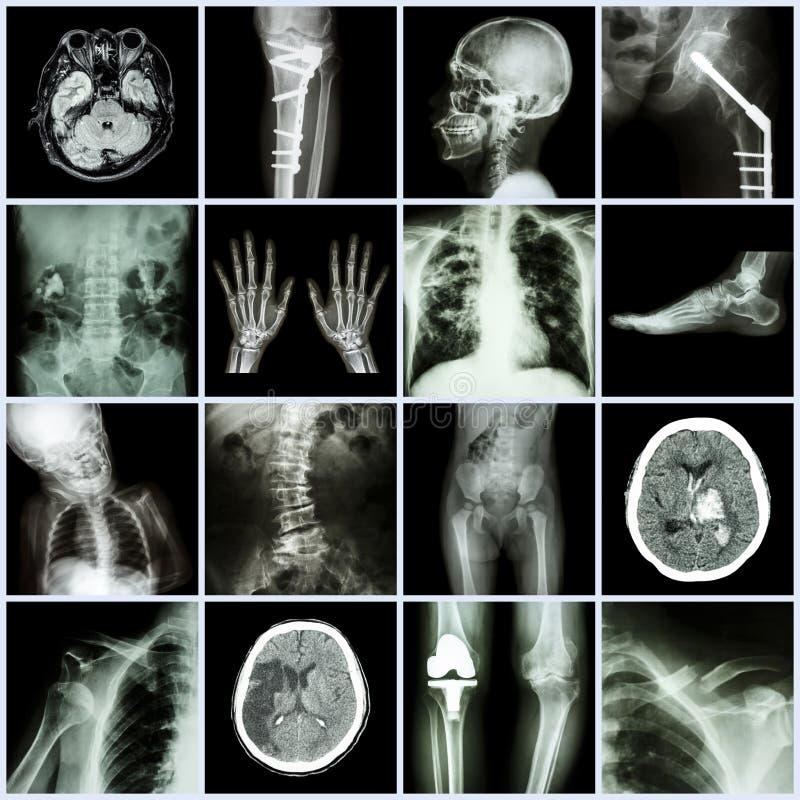 Satz des Röntgenstrahls Mehrfach von der menschlichen, mehrfachen Krankheit, orthopädisch, Chirurgie lizenzfreie stockfotografie