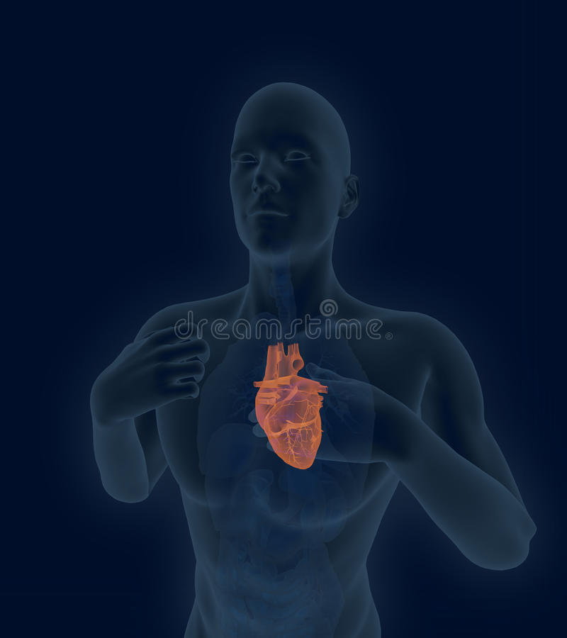 Scan of the human heart with coronary artery disease and hearta. X-ray scan of the human heart with coronary artery disease and heartache 3d render vector illustration