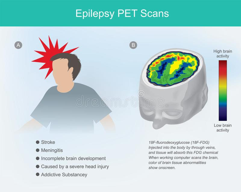 Scannages d'Epilepsy PET illustration de vecteur