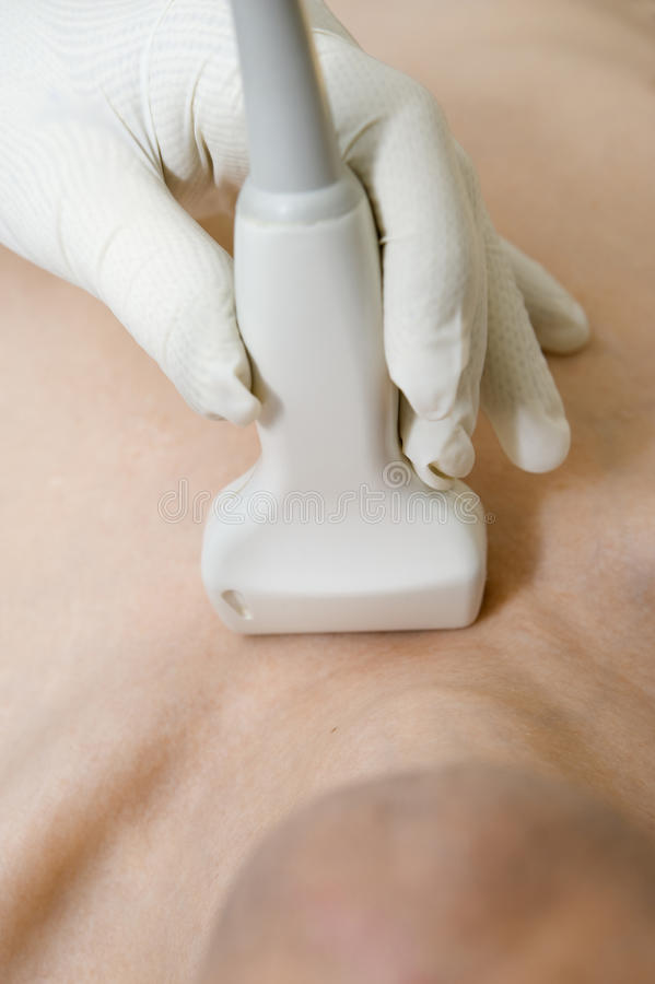 Scanning with ultrasound. Research of blood vessels of a neck by ultrasound stock photo