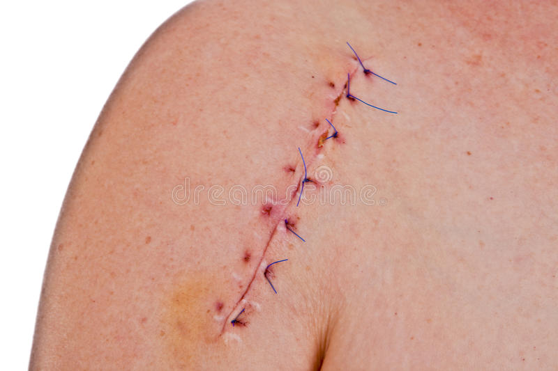 Scar. Close-up picture of a scar on a female shoulder with stitch stock photos