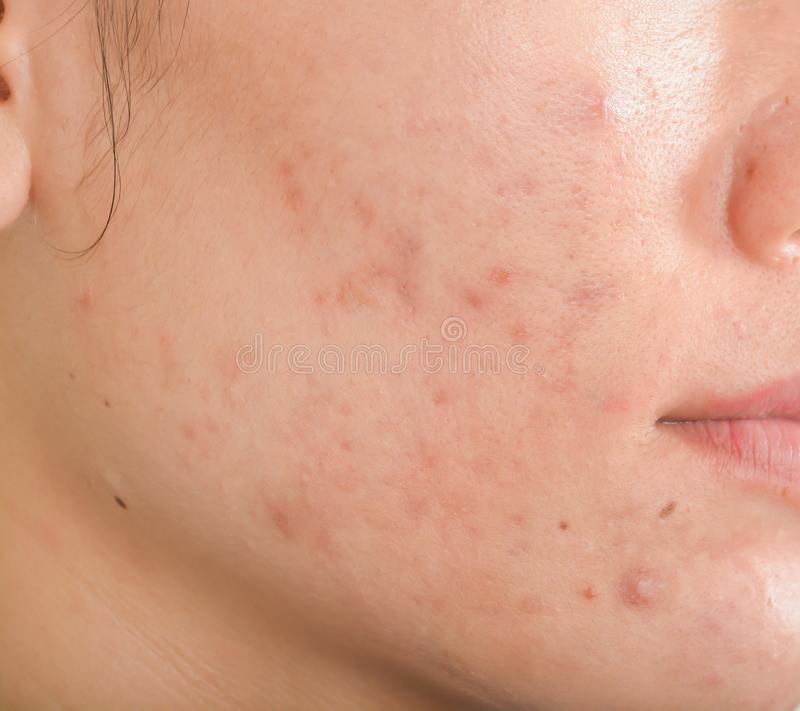 Scar and Black spots on face. Scar from Acne on face stock photos