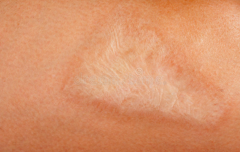 Scar on the body. Large burn scar on the human body stock images