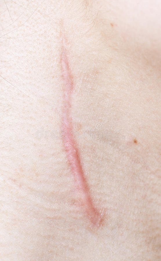 Scar. Close up of scar on human skin stock photography