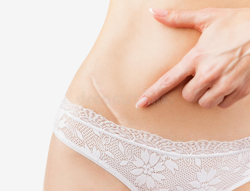 Scar. Closeup of woman showing on your stomach with a scar. Isolated on white background royalty free stock photo