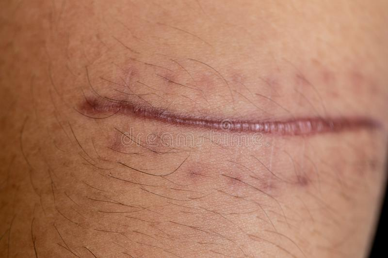 A scar of fibrous tissue that replaces normal skin after an injury on skin. A scar is an area of fibrous tissue that replaces normal skin after an injury on royalty free stock image