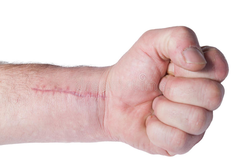 Scar. A hand with a fresh scar royalty free stock photo