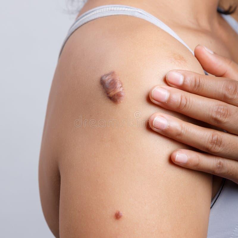 Scar on human skin. Keloid on shoulder royalty free stock images