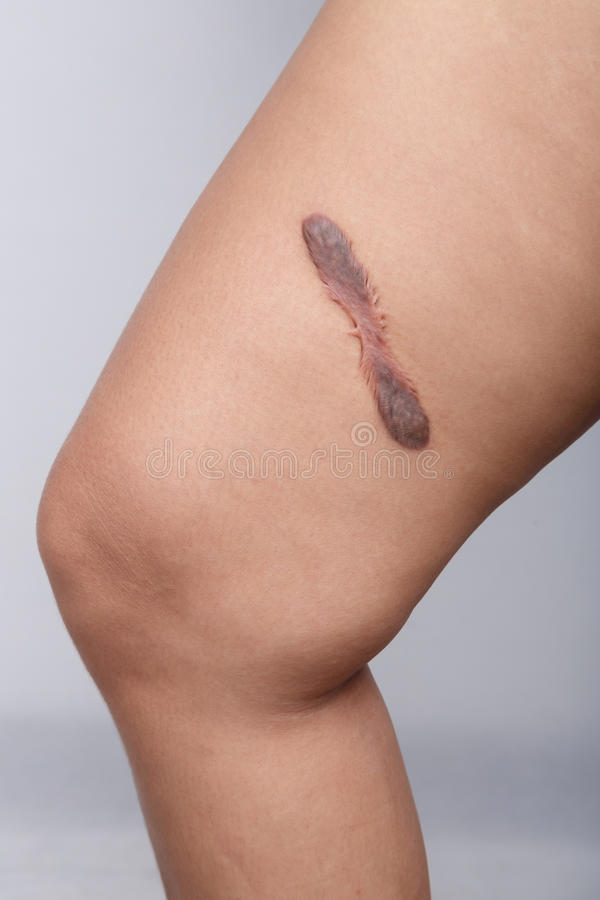 Scar on human skin. Keloid on thigh royalty free stock photography