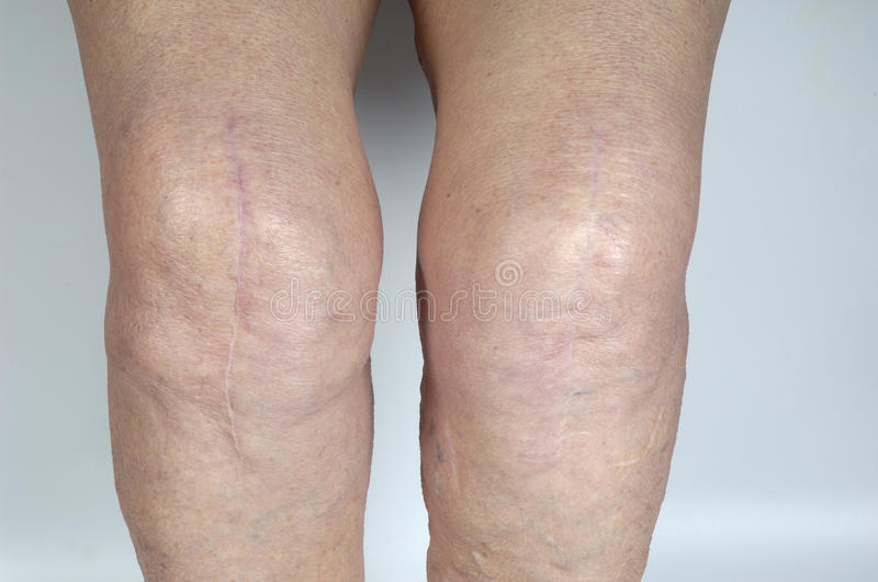 Scar on the knee of a senior woman,. Scar on the knee of an elderly woman royalty free stock photos