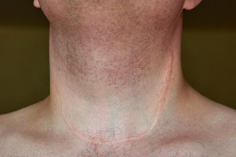 Scar on the neck of a man after removal of the thyroid gland. Close-up royalty free stock photos