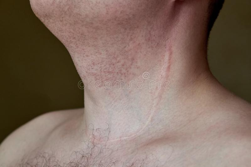 Scar on the neck of a man after removal of the thyroid gland. Close-up stock photos