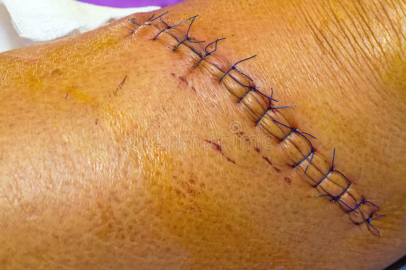 Scar from operation suture with a blue fiber at leg patient royalty free stock image