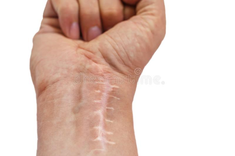 Wound Stitches Surgery Operation Stock Images - Download 194