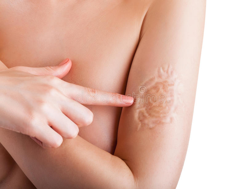 Scar. Woman is pointing a finger at the scar on his hand isolated on white background stock photo