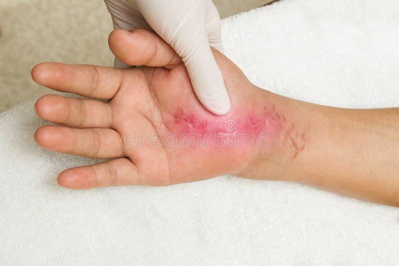 Scar wound on hand. hand injury stock photo