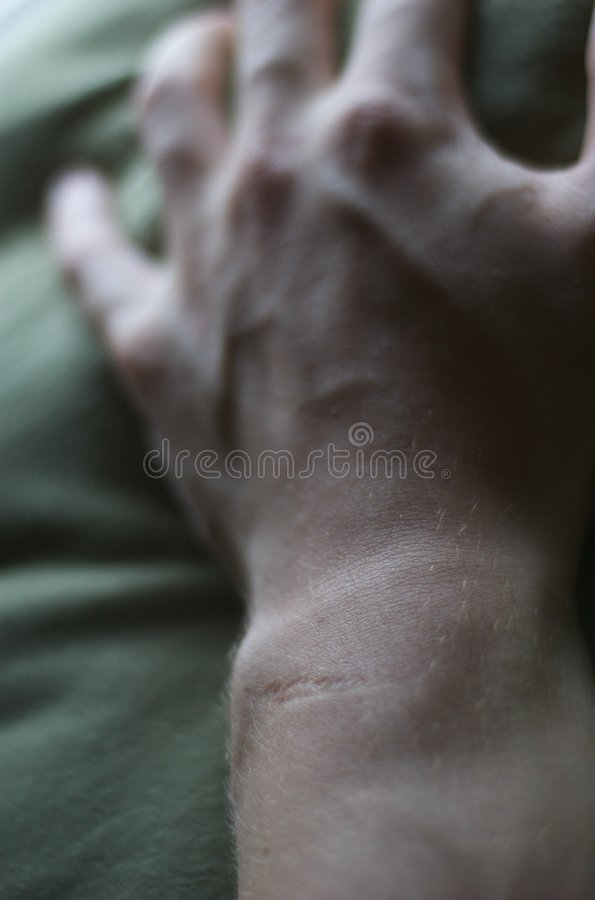 Scarred Wrist Royalty Free Stock Image