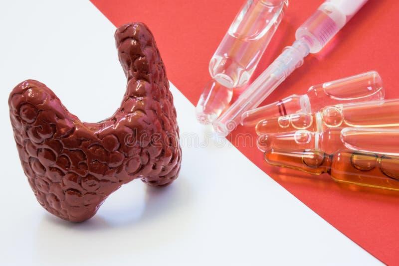 Scena taktować tarczycowe choroby ostre i chroniczne -, z oversupply lub hormonu niedostatkiem Anatomiczny model tarczycowy grucz zdjęcie stock
