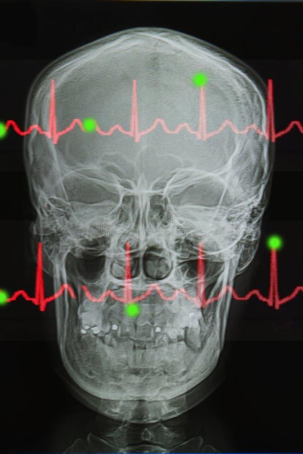 Schädel röntgt Bild und Rettungsleine des EKG stockfoto