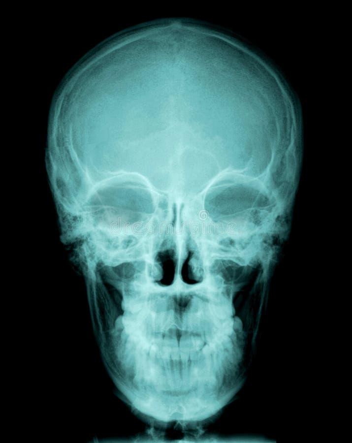 Schädelröntgenstrahl stockfotos