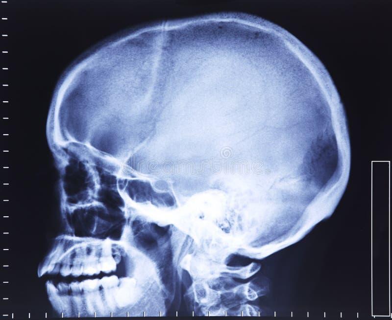 Schädelröntgenstrahl lizenzfreie stockfotos