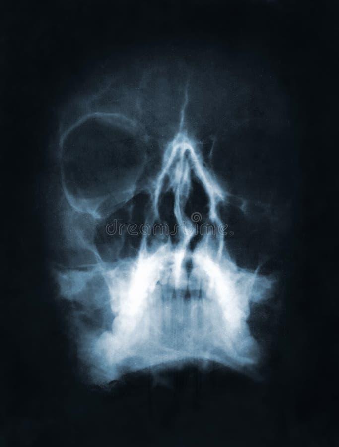 Schädelröntgenstrahlbild stockfotografie