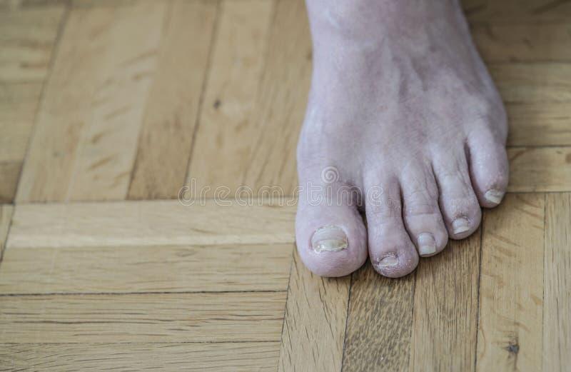Schädigende Nägel wegen Pilz und Athlet ` s Fußes nach Chemotherapie lizenzfreie stockfotos