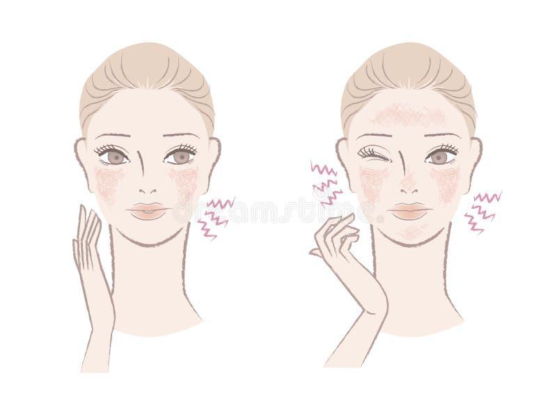 Schöne Frau gestört mit rötlicher, empfindlicher Haut lizenzfreie abbildung