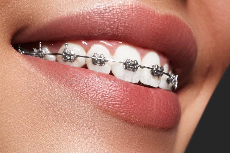 Schöne weiße Zähne mit Klammern Zahnpflegefoto Frauenlächeln mit ortodontic Zubehör Orthodontiebehandlung stockbild