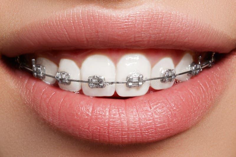 Schöne weiße Zähne mit Klammern Zahnpflegefoto Frauenlächeln mit ortodontic Zubehör Orthodontiebehandlung stockbilder