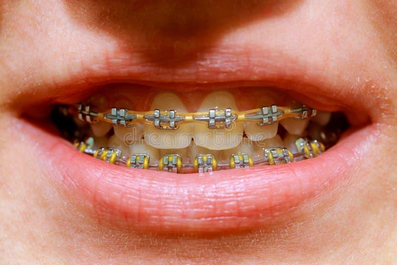 Schöner Makroschuß von weißen Zähnen mit Klammern Zahnpflegefoto Schönheitsfrauenlächeln mit ortodontic Zubehör Orthodontie t lizenzfreies stockbild
