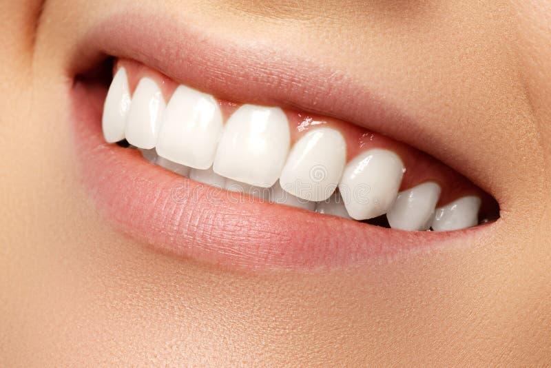 Schönes Lächeln mit dem Weiß werden von Zähnen Zahnmedizinisches Foto Makro-closeu lizenzfreies stockfoto